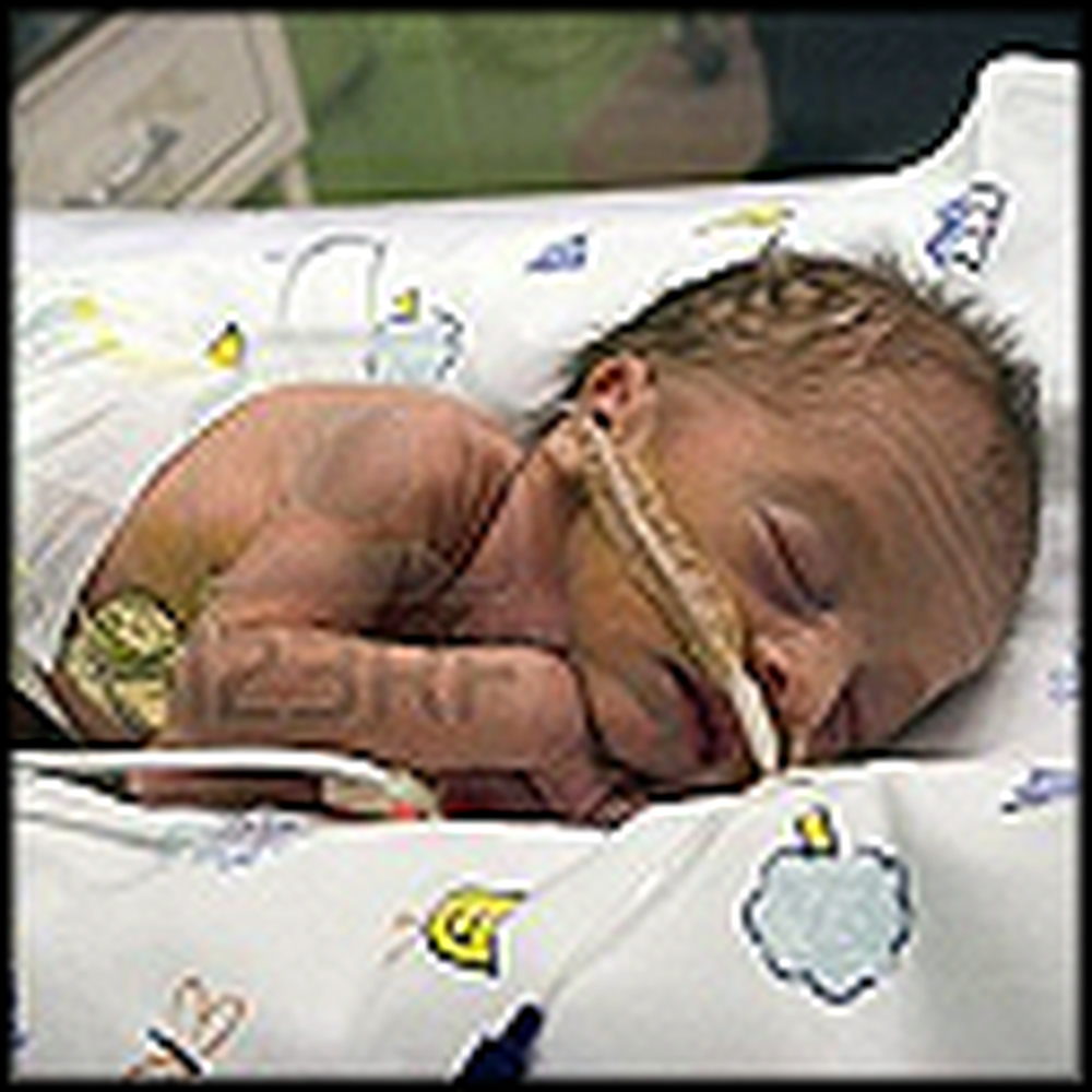 Baby is Born Without the Ability to Breathe - But Then a Miracle Happens