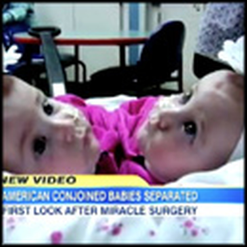 Conjoined Twins Get an Amazing Christmas Blessing