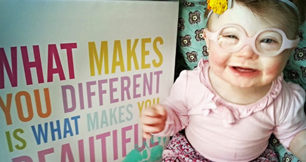Our Differences Are Beautiful, Not Wrong. This Mother Proves That.
