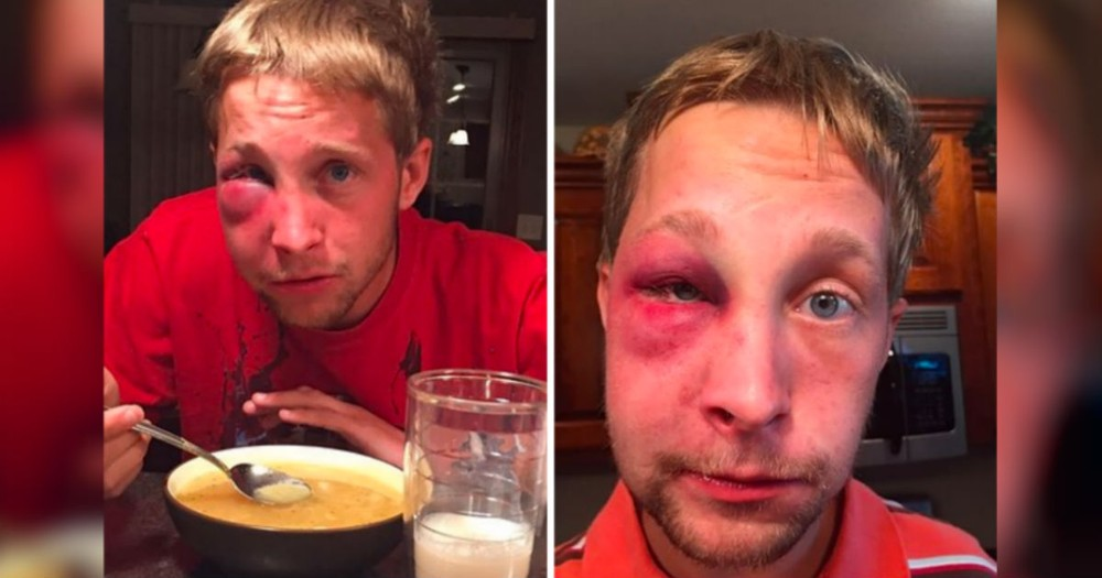 He Was Beat Up For Being 'Weird.' But How He Responded To His Bully...Amazing!