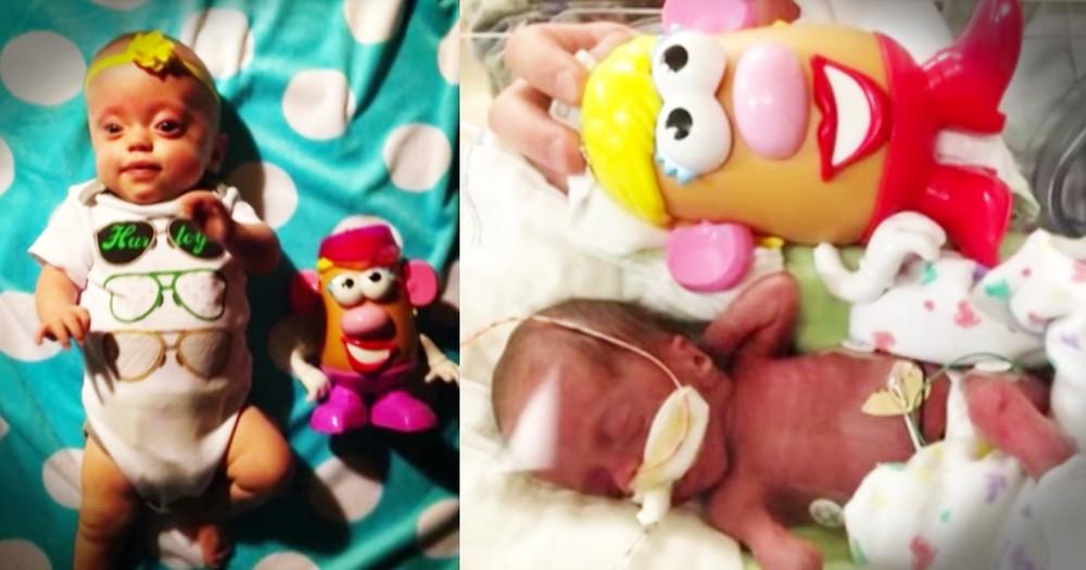 Mr. Potato Head Helps Preemie's Parents Find Hope