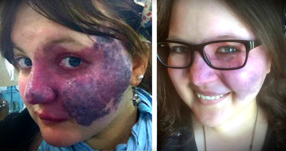 Brave Woman Uses The Birthmark Bullies Targeted To Inspire!