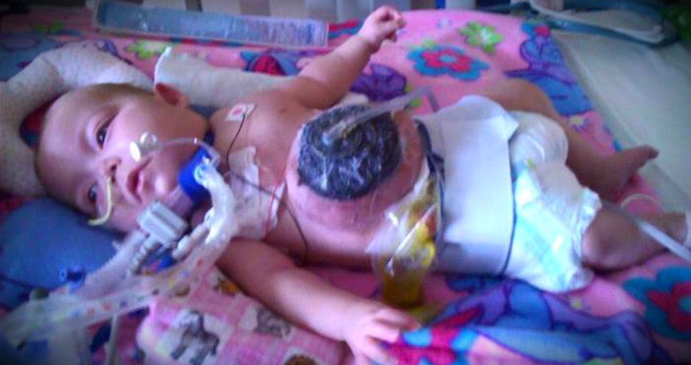 What A Caring Nurse Does For A Sick, Abandoned Baby Is SO Great!