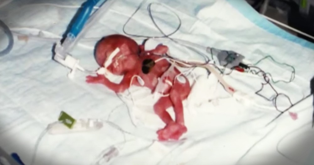 Family's Miracle Baby Stunned The World, Just Look Where They Are Now