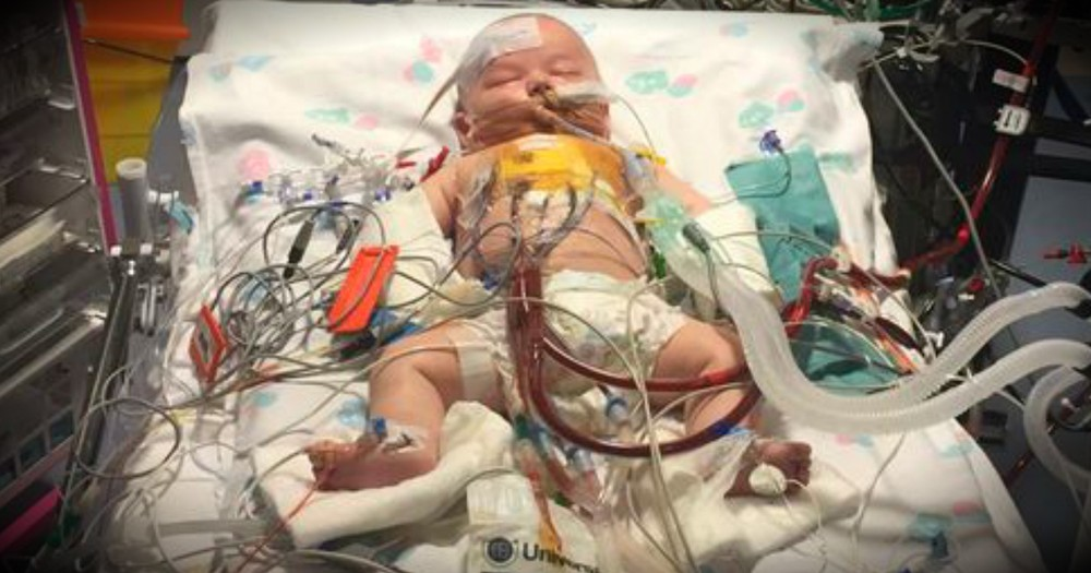 Miracle Baby Survives Surgery That Stopped His Heart For 15 Hours