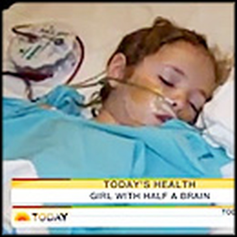 Little Angel Miraculously Survives With Half of Her Brain