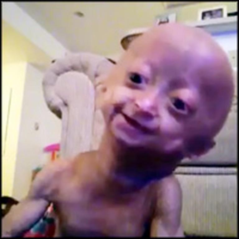 Little Girl with Progeria Sings Jesus Loves Me