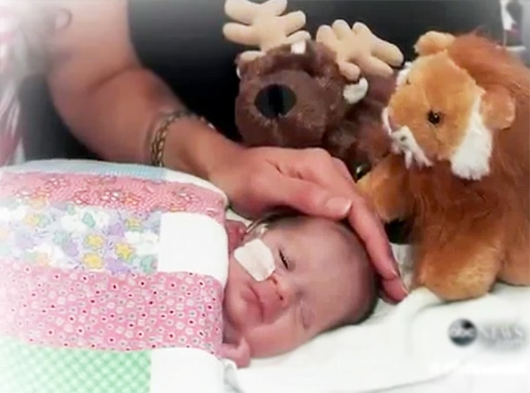 Doctors Said This Baby Was Not Compatible With Life - Then, Something Miraculous Happened.