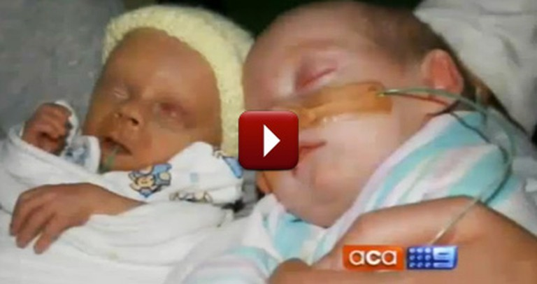 They Were Told to Abort One of their Twins - But Watch This