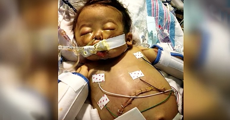 5-Month-Old Receives Life-Saving Organ Donation In A Matter Of Minutes