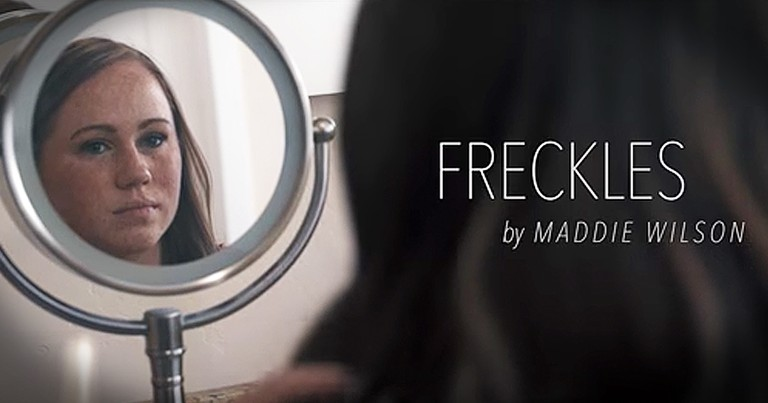 Inspirational Song 'Freckles' Remind Us To Embrace Our Differences