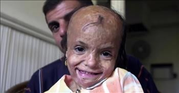 Badly Scarred Young Girl Receives Care After Mother's Selfless Sacrifice