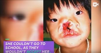 Young Girl's Massive Facial Deformity Fixed By Amazing Surgeons