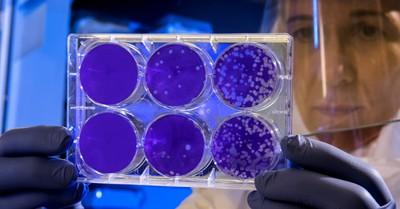 Petri dish, international panel says to pump the brakes on gene editing