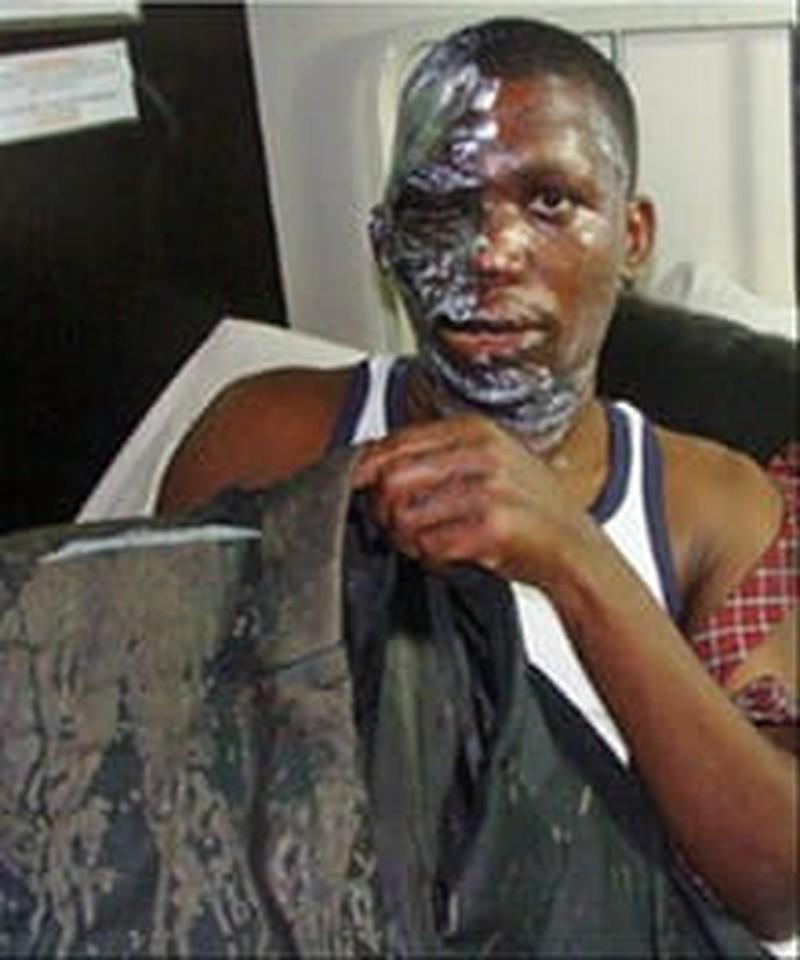 Muslim Extremists in Uganda Throw Acid on Bishop